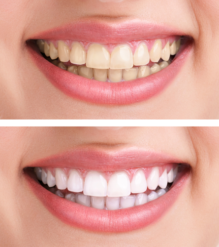 Teeth Whitening in Christchurch | Palms Dentist, Shirley